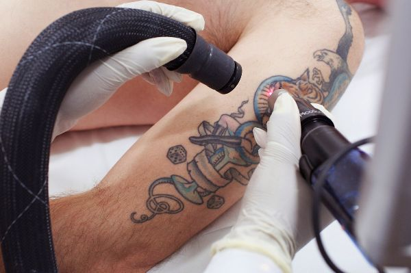 RevLite - Tattoo removal