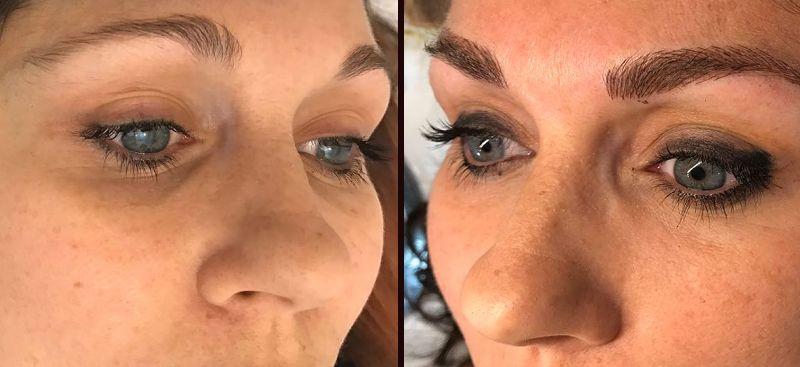 Dermopigmentazione viso - GMG Italia